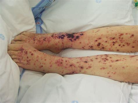 will herpes spread during picture 18