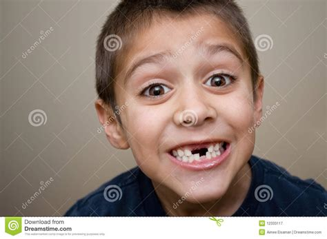 photos of people with teeth missing picture 12