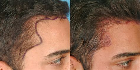 cost of hair transplants picture 3
