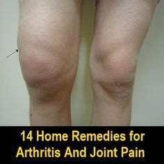steroid like herbs for joint pain picture 6