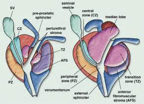 Prostate cancer of the apex picture 6