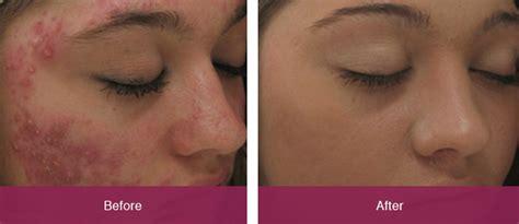 co2 spray acne picture 1