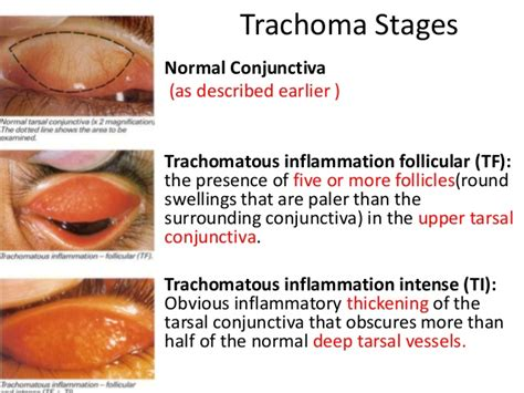 stages of the bacterial infection picture 1