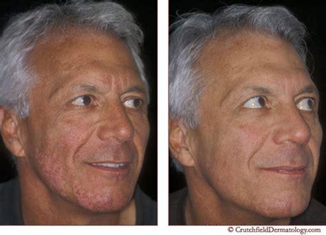 skin care for vitaligo picture 5