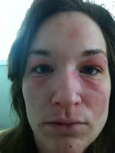 allergic reaction to black panther pill picture 8