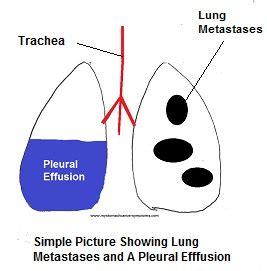 pleural effusion natural treatment picture 5