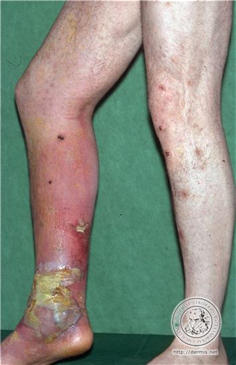 images of herpes lesions picture 7