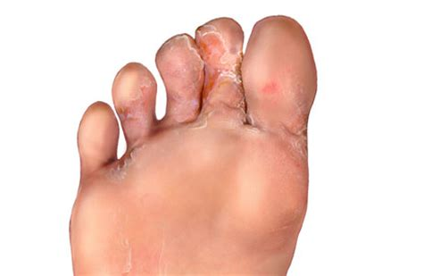 no appe e weight loss swollen foot are symptoms of picture 14