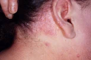 can thyroid cause red scalp picture 1