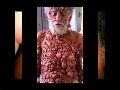 pictures of skin diseases on humans picture 7