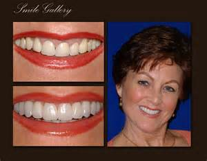 palm beach tooth whitening picture 6