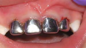 silver spring teeth crown picture 7