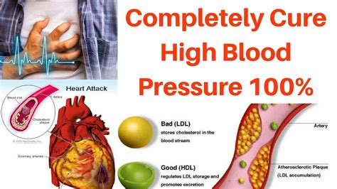 Asian medical cures to high blood pressure picture 1