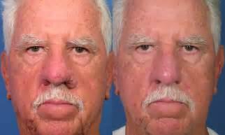 lip line treatment picture 5