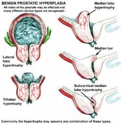 what is involved in a bladder extension picture 1