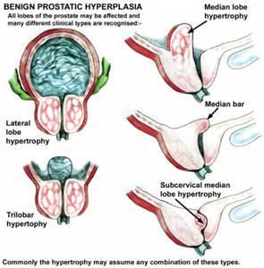 define prostatic hypertrophy picture 17