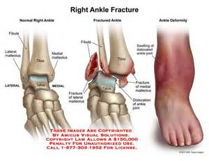ankle joint recurrent subluxation dislocation picture 14