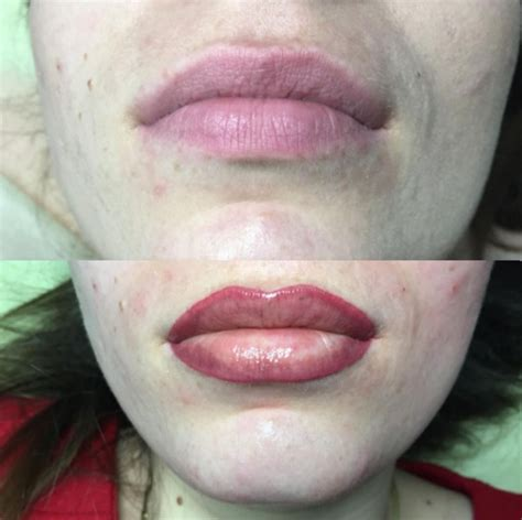 what causes crooked lips picture 5