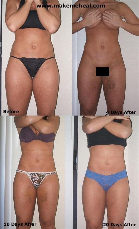 after lipo 6 black her picture 14