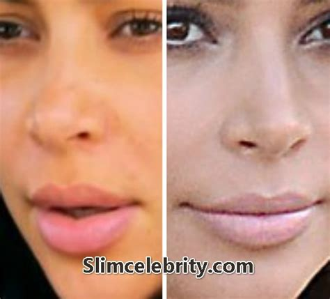 stop swelling from lip injections picture 14