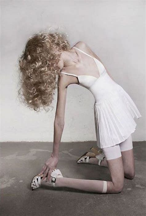anorexic picture 9