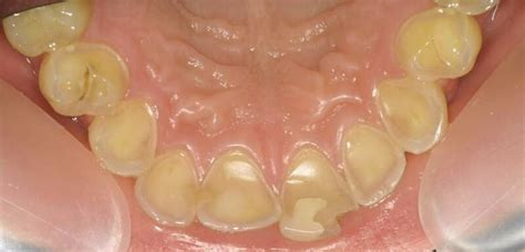 acid reflux in infants teeth picture 17