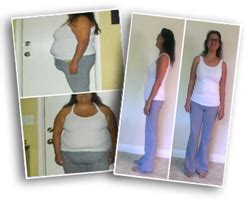 surgi-lite weight loss surgery picture 5