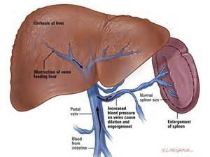 big liver and spleen disease picture 2