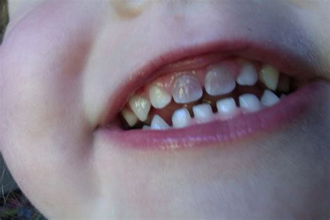 childrens teeth discoloration and veneers picture 2