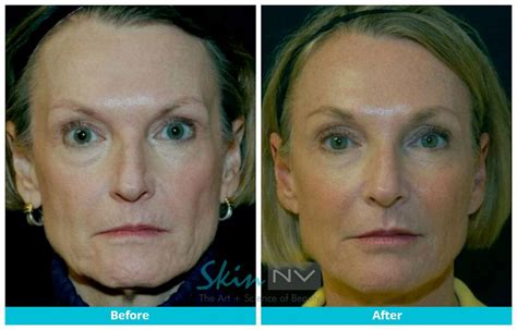 is sculptra good for acne scaring picture 5