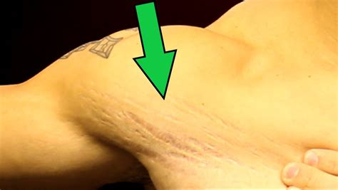 stretch marks and muscle growth picture 5