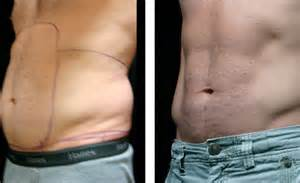 lipo marks for men picture 3