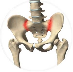 sacroiliac joint pain symptoms picture 10