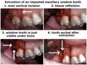 wisdom tooth extraction picture 17