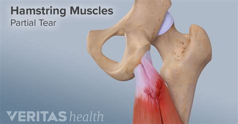 hamstring muscle injuries picture 15