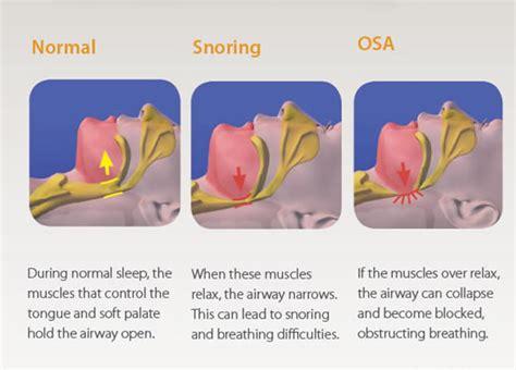 can sleep apnea lead to bad breath picture 11