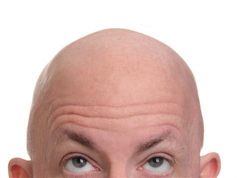 baldness picture 3