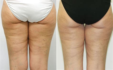 cellulite reducer picture 5