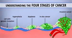 symptoms of final stages of liver cancer picture 8