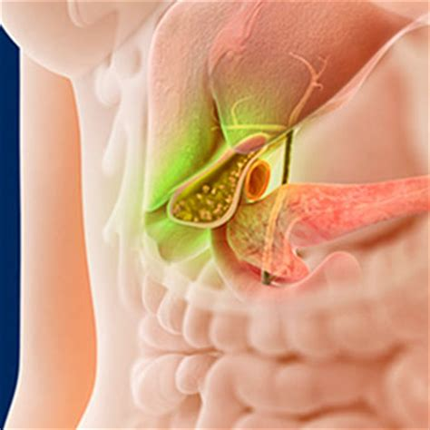 healing a sore gall bladder picture 7