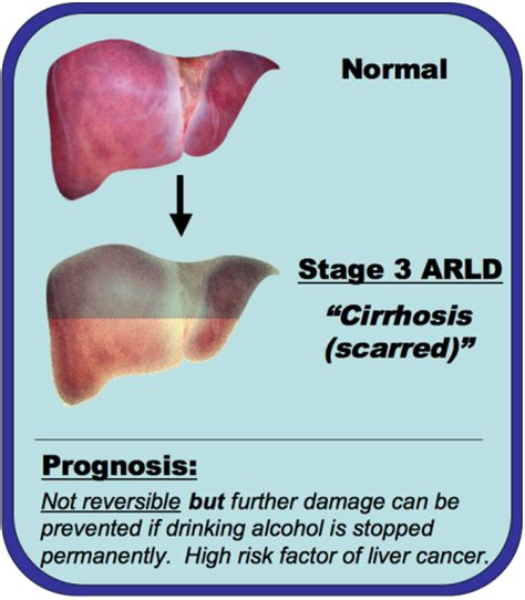 liver failure due to alcohol picture 6
