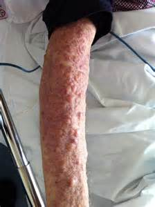 leukemia and skin picture 1