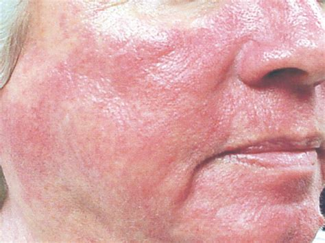 acne statin reviews picture 11