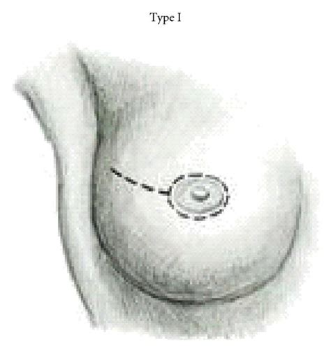 women getting breast chopped off picture 7