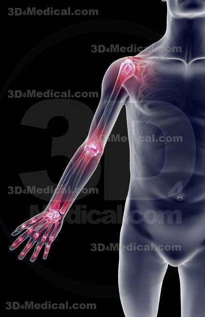 armor and joint pain picture 1