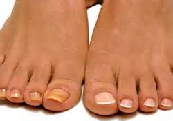 i smoke and have yellow toe nails what picture 11