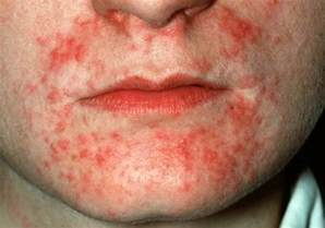 can mercury poisoning cause acne picture 3