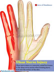 nerve aches picture 7