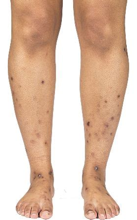 acne scar coverup picture 2
