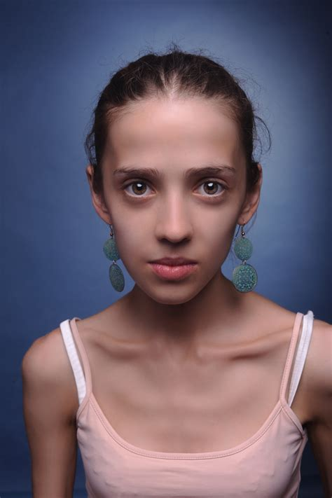 weight loss of an anorexic picture 5